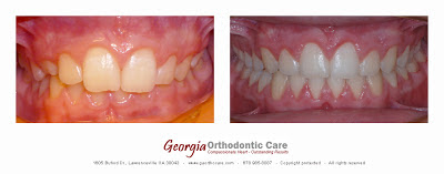 Deep Bite, Overbite, Orthodontic Treatment, Lawrenceville, GA 30043