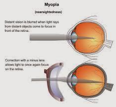 Cara Terapi Mengobati Mata Rabun Jauh ( Minus )