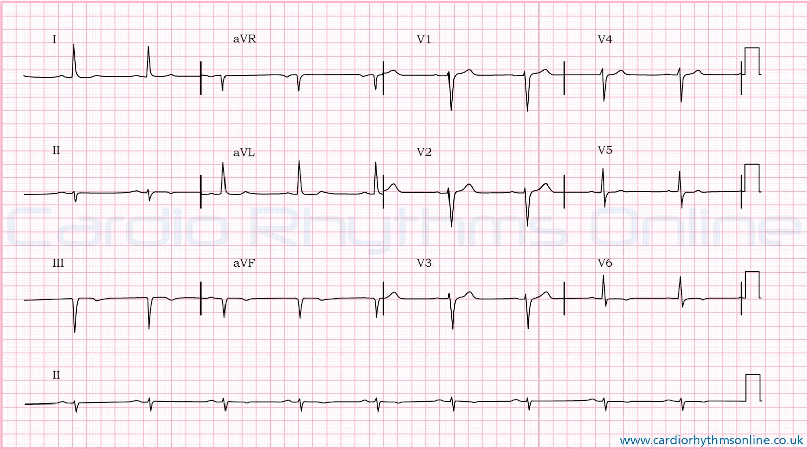 Cardiac Nursing Case Study Myocardial Infarction