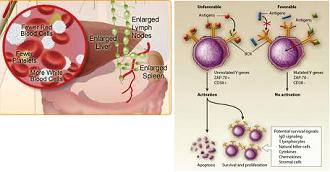a medical overview of the disease leukemia Ravandi f, jorgensen jl, o'brien sm, et al eradication of minimal residual disease in hairy cell leukemia  institute for medical education, university .