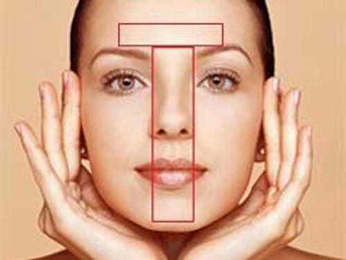 Tips Cara Mengatasi Kulit Wajah Berminyak pada Zona T