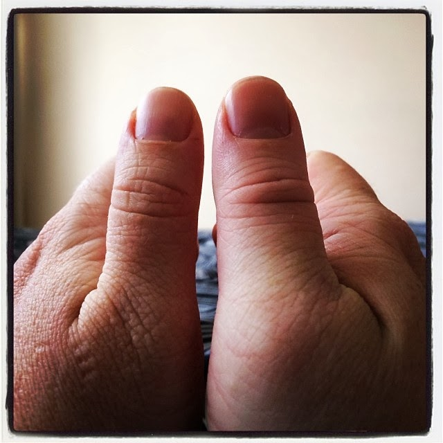 my very swollen thumb with my normal thumb for comparison