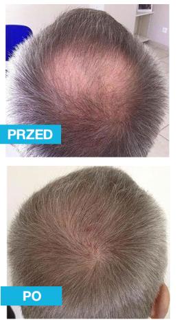 Suplement diety na łysienie dla mężczyzn