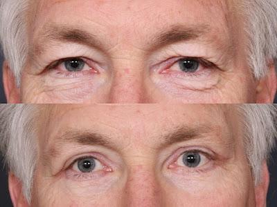 göz kapağı estetiği fiyatı, göz kapağı düşüklüğü estetiği ücreti, göz kapağı kaldırma fiyatları