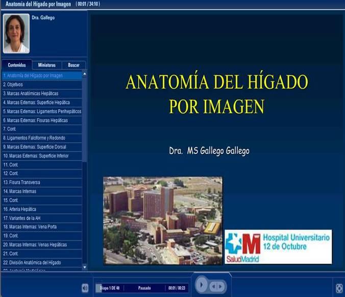 Todo Ecografía Médica: Anatomía del Hígado por Imagen.