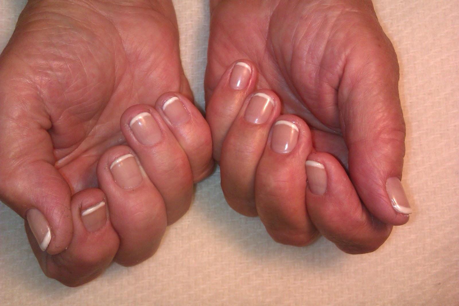 Фото ногтей руки ноги