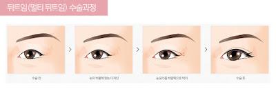 Buang Mata Mengantuk Dengan Operasi Plastik Mata Artis Korea