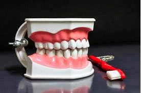 Dental Implants Silver Spring