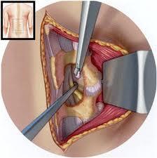 Tumores Cerebrales De M 233 Dula Espinal De Columna