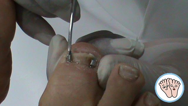 El medio eficaz del hongo sobre las uñas de los pies las revocaciones el precio