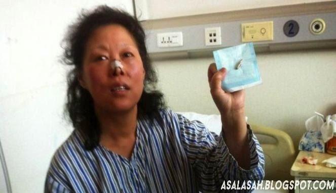 http://asalasah.blogspot.com/2014/03/peluru-nyangkut-di-kepala-wanita-ini.html