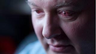Ian Tibbett has sight restored through tooth in eye