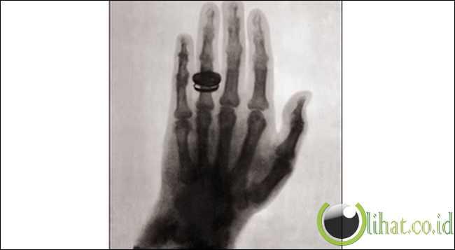Foto Manusia Dengan Sinar Rontgen Pertama (1896)