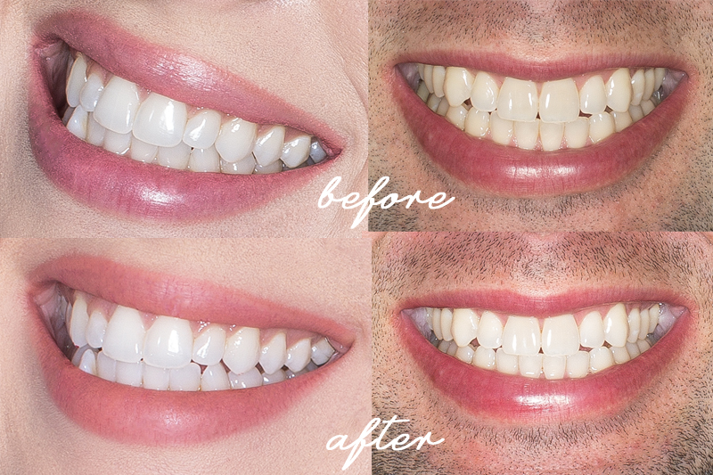 smile brilliant teeth whitening before and after