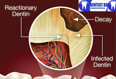 reactionary dentin Reactionary changes in dentine