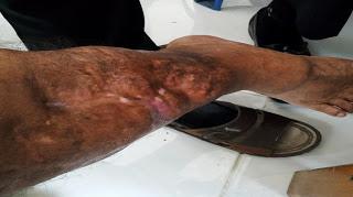 Benakah Sayuti Margolang Diduga Korban Mal Praktek Dr.Prasojo