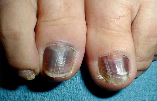 Frictional Melanonychia Nails Diseases