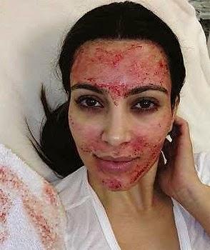 Rawatan kecantikan menggunakan darah pelanggan