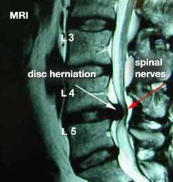 MRI- Chiropractic Care