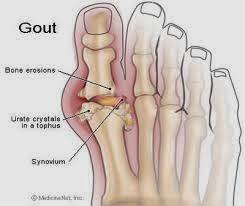 apa gout dan punca gout