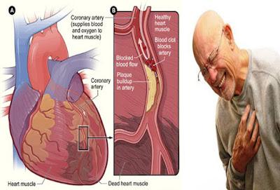 Kolestrol penyebab serangan Jantung.