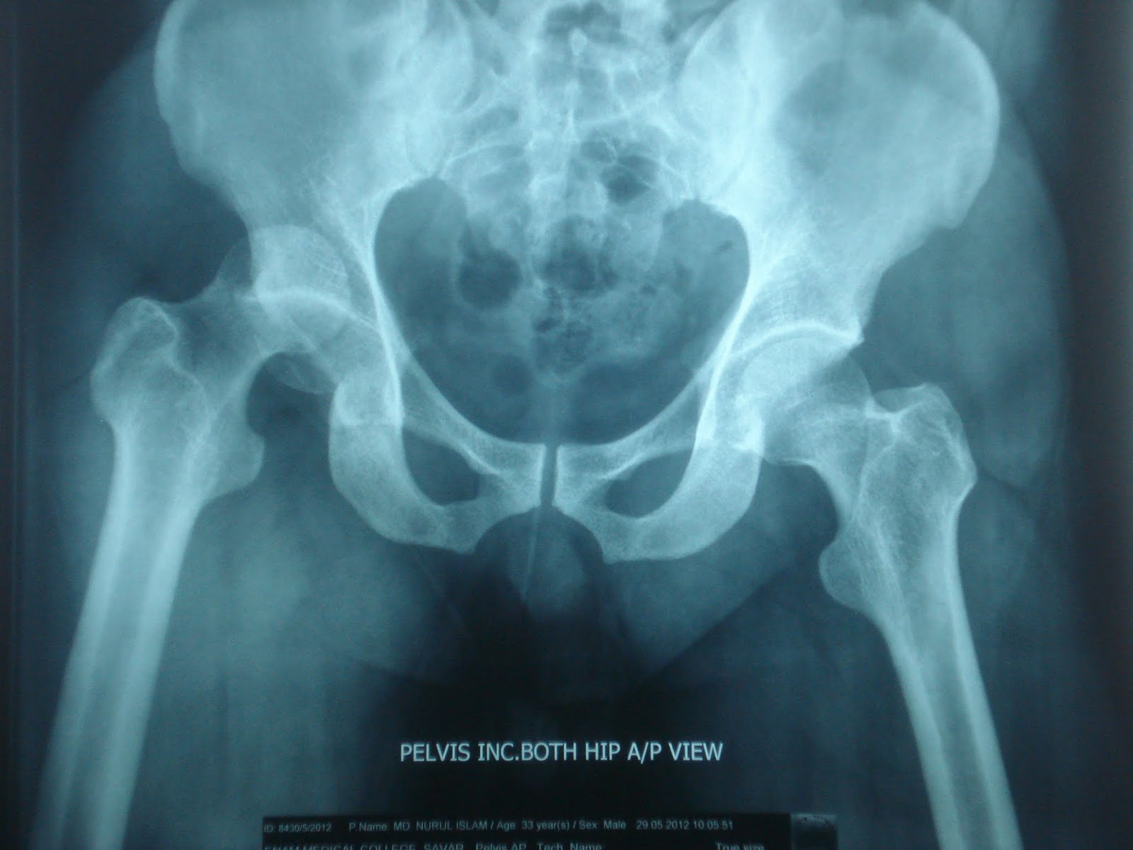 Posterior dislocation of right hip of a middle aged man from RTA.-2.bp.blogspot.com