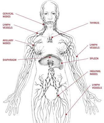 Linfoma, câncer no sistema linfático, deve ter diagnóstico precoce