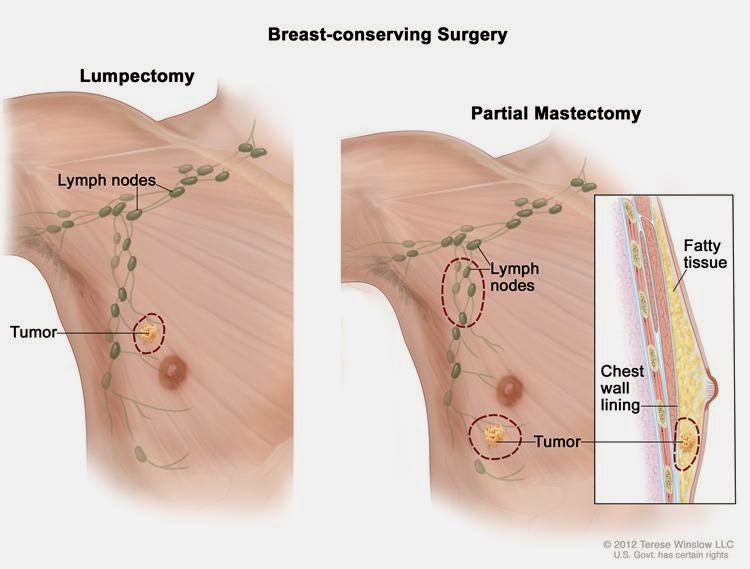 Male Breast Cancer Symptoms