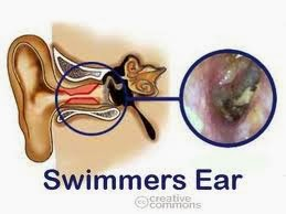 Cara Menyembuhkan Radang Telinga