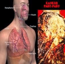 Cara Menyembuhkan Kanker Paru-Paru