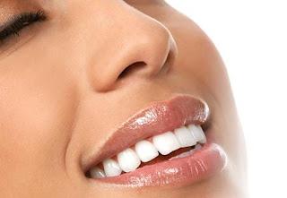 sustainable-tooth-whitening-methods - طريقة تخلي الاسنان بيضة بتلمع بعد اسبوع بالكتير