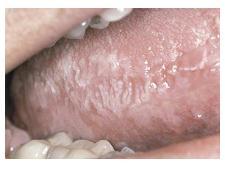 PDQ ORAL DISEASE: Hairy Leukoplakia