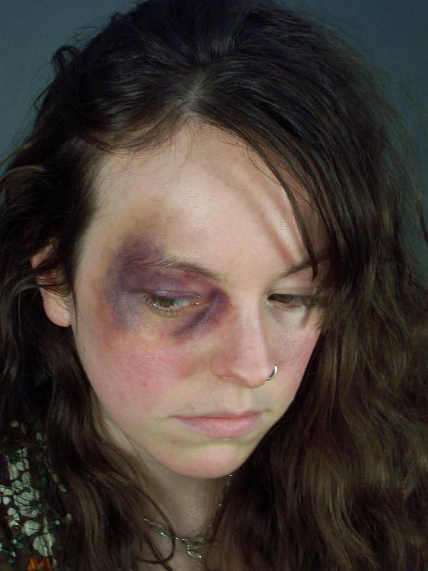 Black+Eye+Woman.jpg
