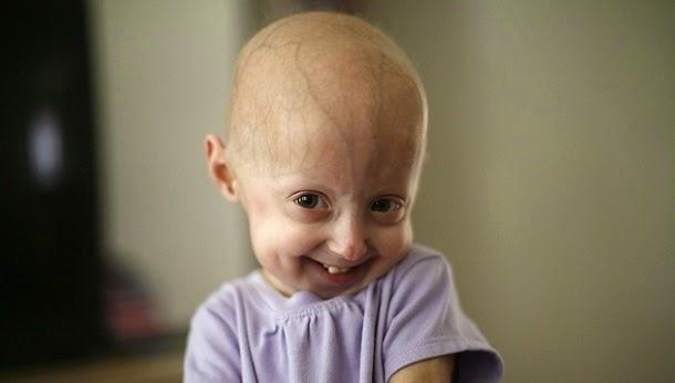 Síndrome de Hutchinson-Gilford Progeria