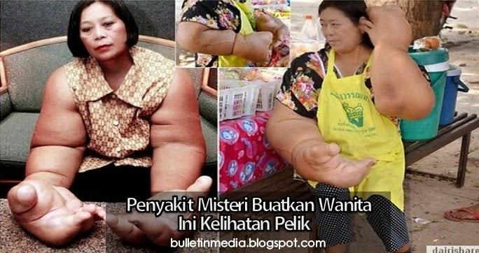 Penyakit Misteri Buatkan Wanita Ini Kelihatan Pelik