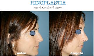 rinoplastia_operacion_nariz_cirujano_plastico