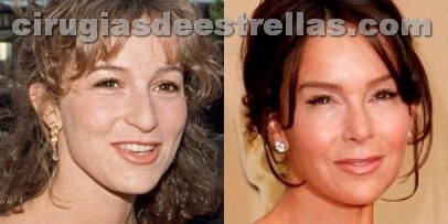 Jennifer Grey antes y después de la rinoplastia