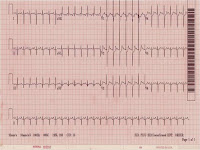 EKG of the Day (7/9)