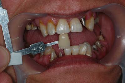 toma color diente ceramica dental