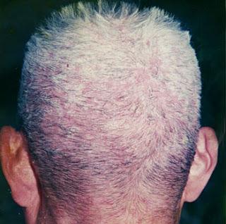 thuốc chữa nấm da đầu nhanh nhất