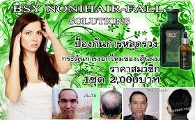 โนนิแฮร์ฟอล โซลูชั่น NONI HAIR-FALL SOLUTIONS