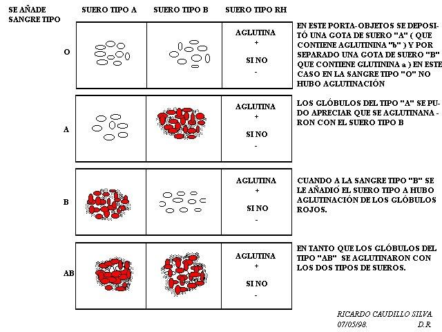 la cerveza sin alcohol da acido urico nivel alto de acido urico en sangre ejercicios recomendados para bajar el acido urico