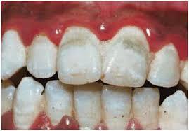 Tips Merawat Gigi Supaya Tetap Putih Dan Bersih Tips Kesehatan Dan