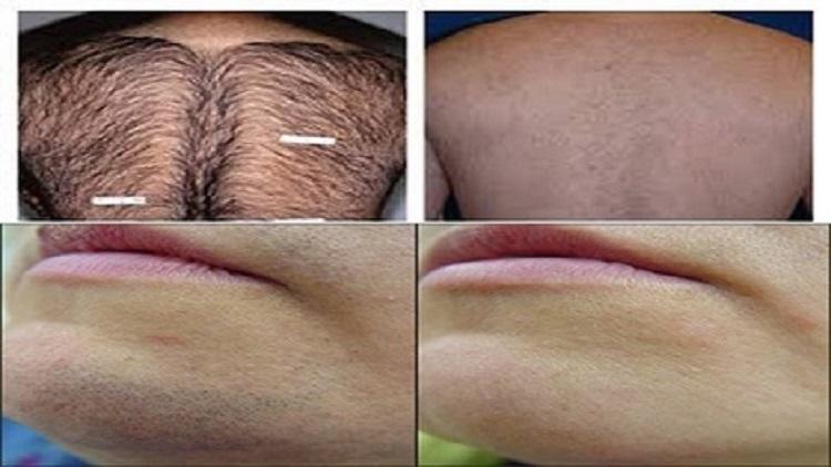 وصفة فعالة لازالة الشعر بشكل نهائي من الجسم