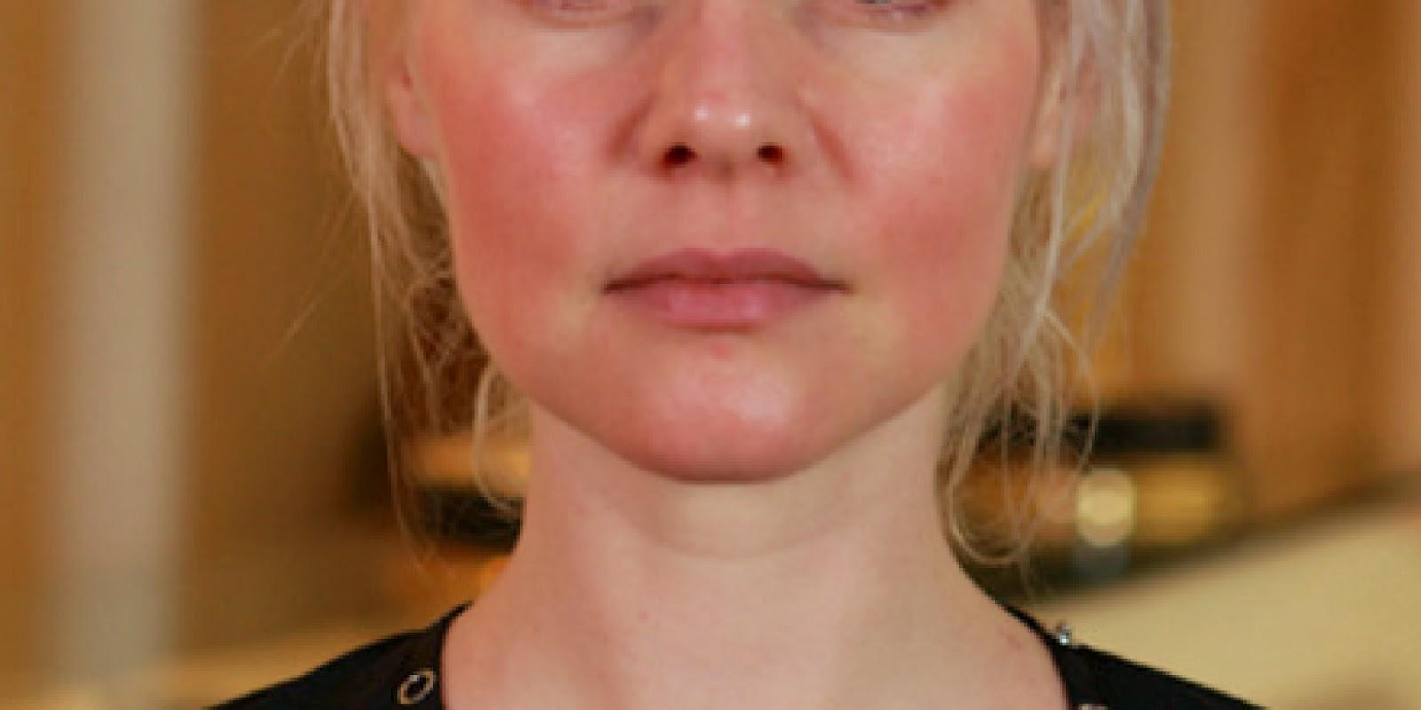 El pulido láser de la persona al acné las revocaciones