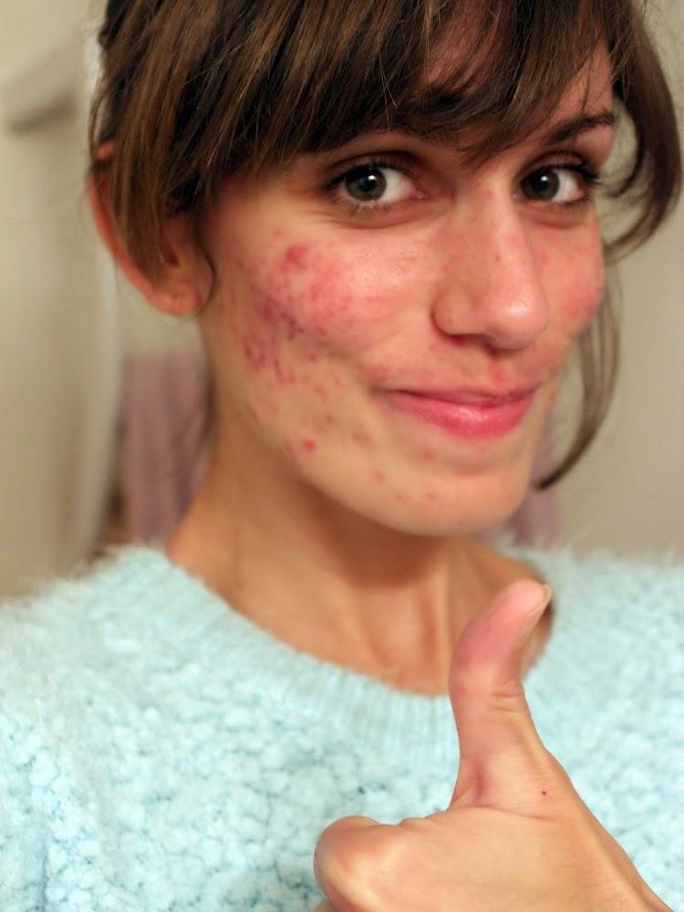 Astuce comment blanchir sa peau for Astuce maison pour avoir un beau visage