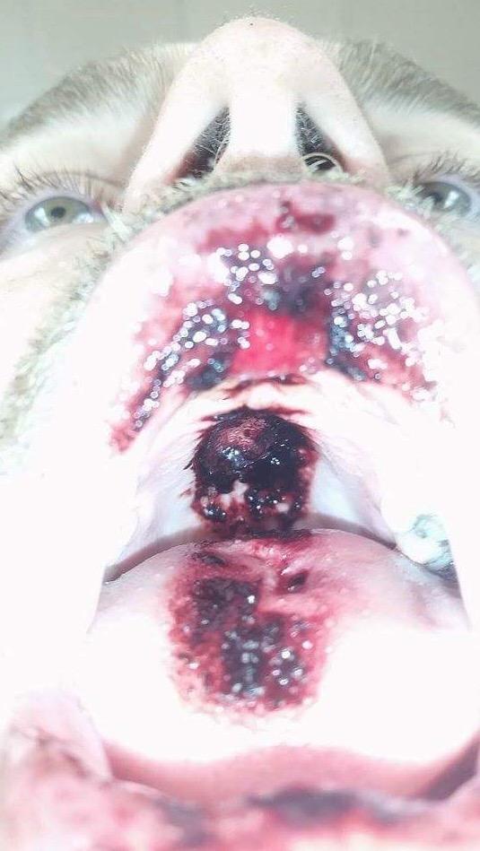 Gambar Ngeri Vape Meletup Dalam Mulut Seorang Vapor