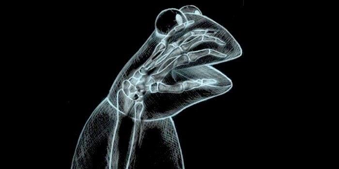 Radiografías insólitas
