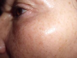 piel del rostro sin arrugas