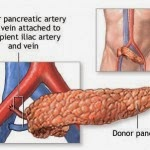 Pancreas transplantation, Alternative Type-1 Diabetes Treatment